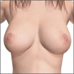 breast implants step 5