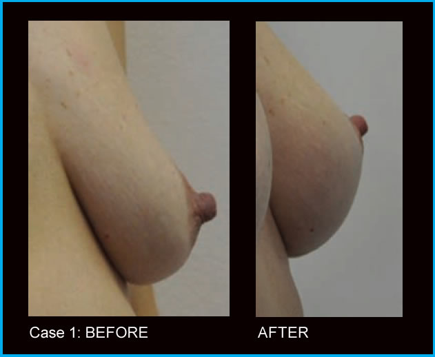 Teardrop+shaped+breast+implants+pictures