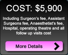Rhinoplasty-Septoplasty_cost