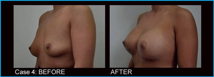 breast-augmentation-case4