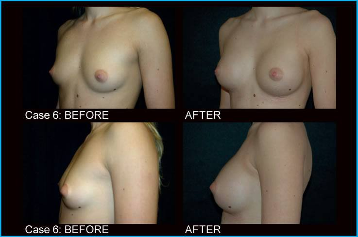 breast-augmentation-case6