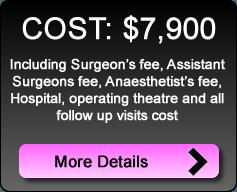 vaginal_tightening_cost
