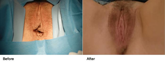 vaginoplasty_3