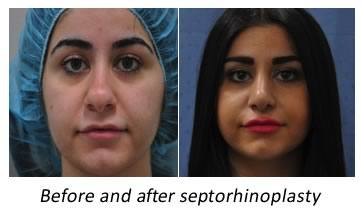 before and after nose surgery sydney