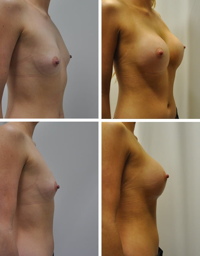 365cc Submuscular silicone implants by Dr Barnouti