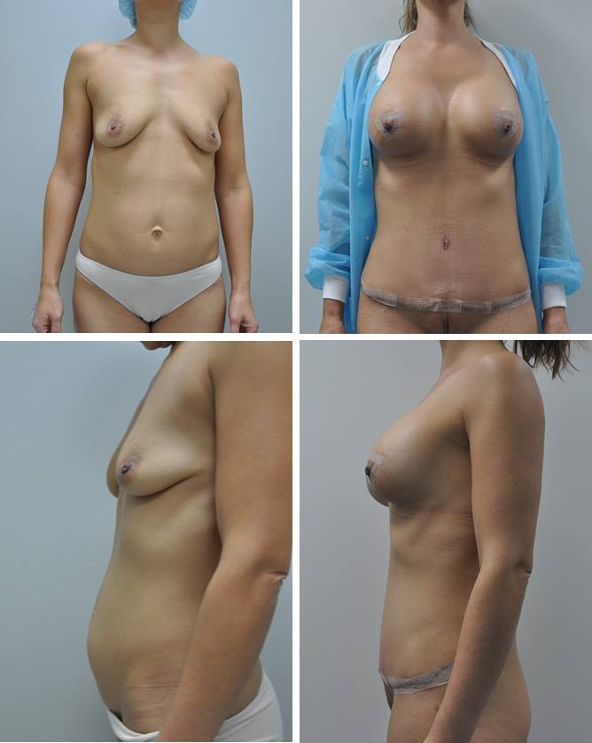 before and after tummy tuck and breast lift and 415cc implants by Dr Barnouti
