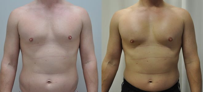 before and after Pectoral implants by Dr Barnouti 230cc textured rectangular anatomical chest implants