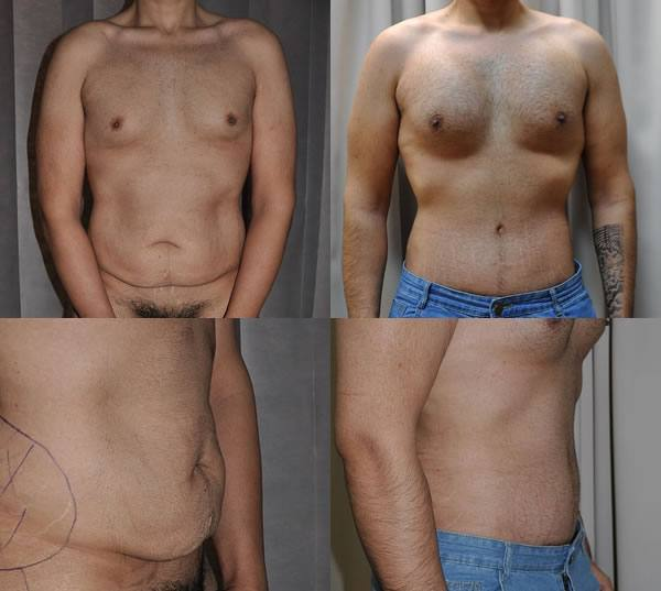 Abdominoplasty and pectoral implants