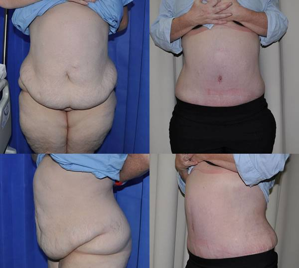 Abdominoplasty Before/After