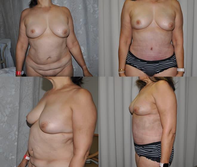 Abdominoplasty April 2019