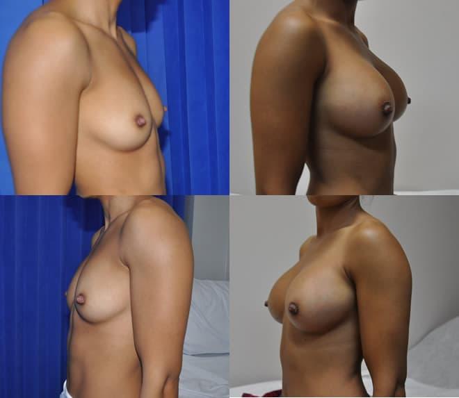 Implants April 2019