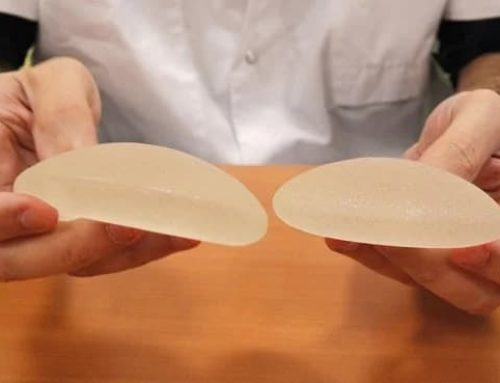 Links Between Textured Breast Implants and a Rare Form of Cancer