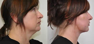 Facial Rejuvenation Before After Gallery