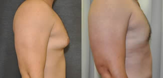 Male Breast Reduction Before After Gallery