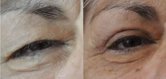 Eye Bag Lift Before After Gallery