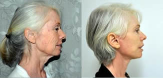 Face and Neck Lift Gallery