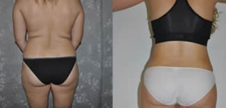 Liposuction Before After Gallery