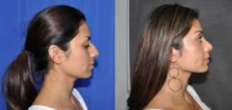 Rhinoplasty Before After Gallery