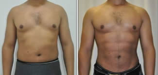 Abdominal Etching Before After Gallery
