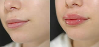 Lip Augmentation Before After Gallery