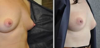 Nipple Reduction Before After Gallery