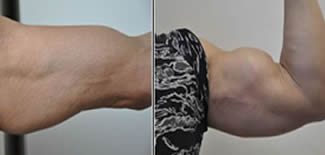 Bicep Enhancement Before After Gallery