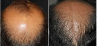 Scalp Reduction Before After Gallery