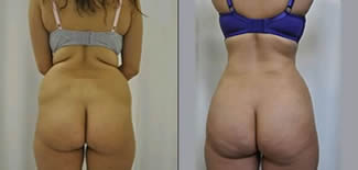 Buttock Lift Before After Gallery