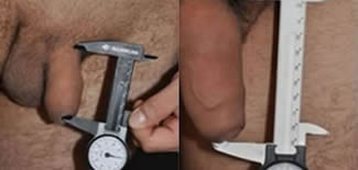 Penile Lengthening Before After Gallery