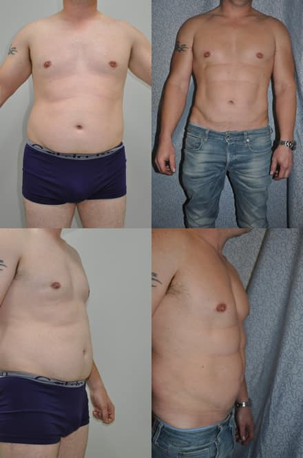 6 Packs Liposculpture