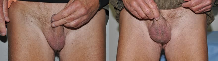 Before and 4 weeks after Testicular Implant. Notice the expansion in the scrotum.