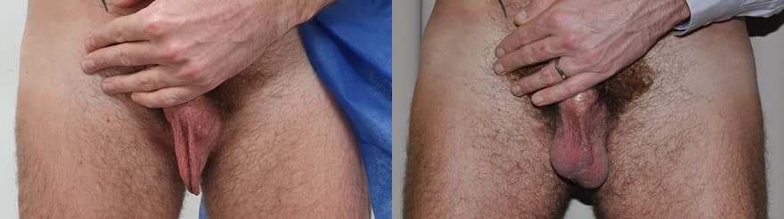 Testicular Implants Before After