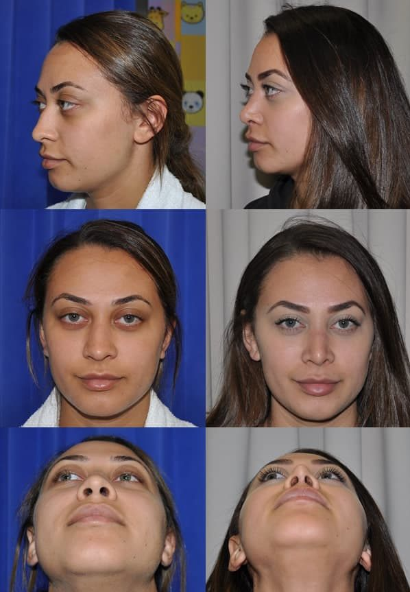 Rhinoplasty Before After 2020