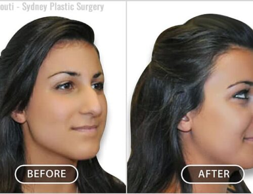 Face and Neck: Nose Surgery