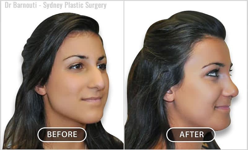 Face and Neck Surgery Before/After
