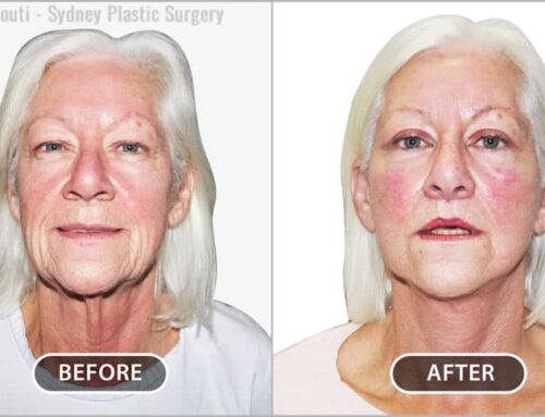 Face and Neck: Facelift