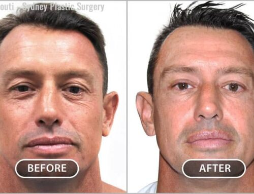Face and Neck: Eyelid Surgery