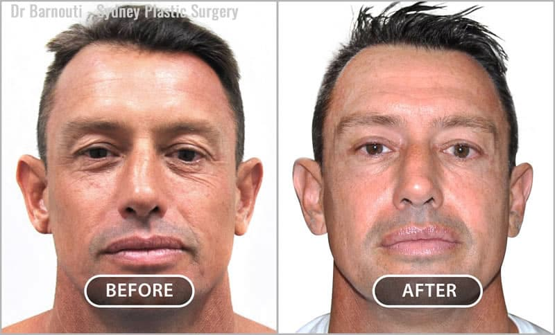 Upper eyelid surgery, notice also the slight improvement in the lower eyelids despite the fact that I have not operated on the lower eyelids. A PRP effects through a lateral incision Tunnel.