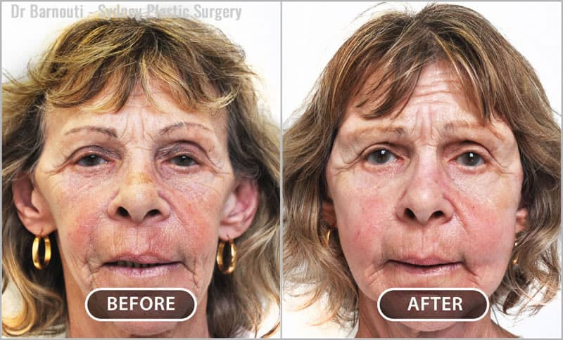 In the before picture, we see a skeletonised face after weight loss. A minimally invasive procedure with fat injections transformed her face. The procedure took one hour. The recovery time was only five days. A neck/ face lift would have been the wrong choice for this patient because it would have further skeletonised her face.