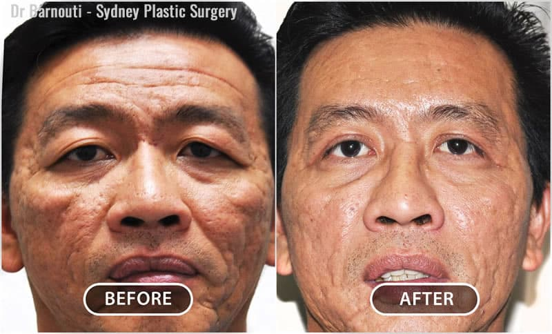 Facial fat injection and upper eyelid surgery. Facelift surgery would have been the wrong choice and cost more. Notice the forehead rejuvenation after fat and stem cell injections. Unlike Botox, it is a permanent result. Forehead rejuvenation using fat and stem cell injection is a scar-less procedure.