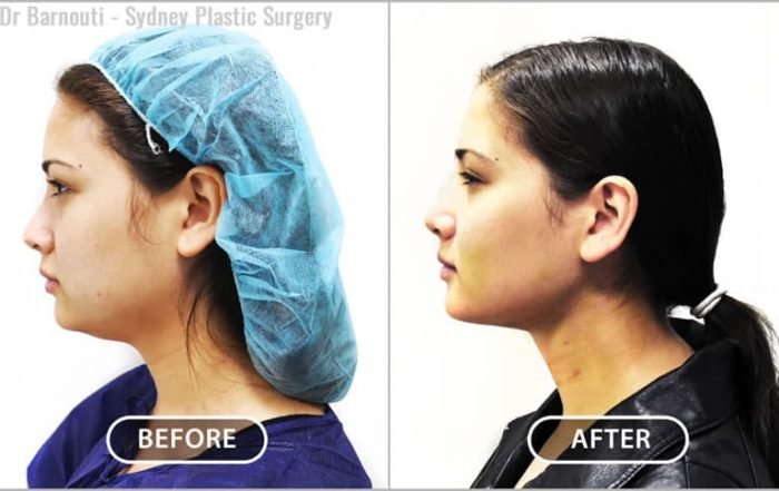 This patient had neck liposuction and buccal fat pads removal.