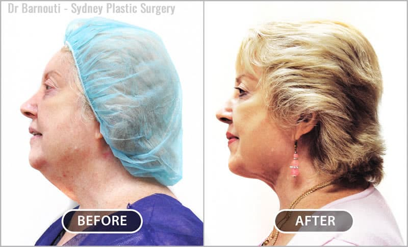"""Neck lift and liposuction corrects the dreaded """"double chin""""."""