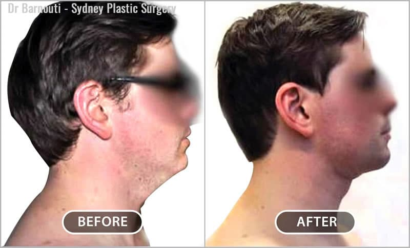 You can see the effect liposuction had on this patient. In the after photo, his chin is more defined, and his turkey wattle is gone, yet his neck looks natural.