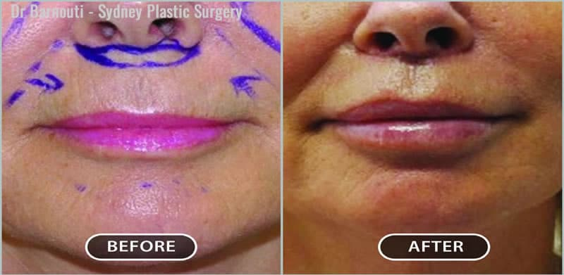 This patient had a lip lift and augmentation.