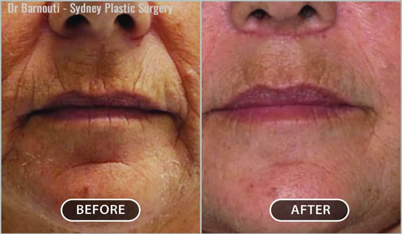 Rejuvenation of the lip and chin area using fat injections, a lip lift and laser treatment.