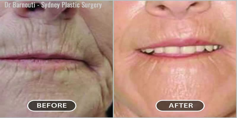 This patient's lip lift and laser treatment resulted in a much smoother and rejuvenated appearance.