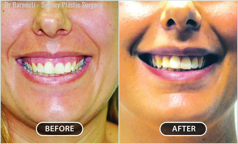 This patient had her gummy smile corrected.