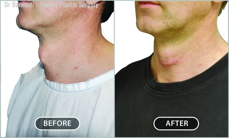 This patient had tracheal shave surgery.