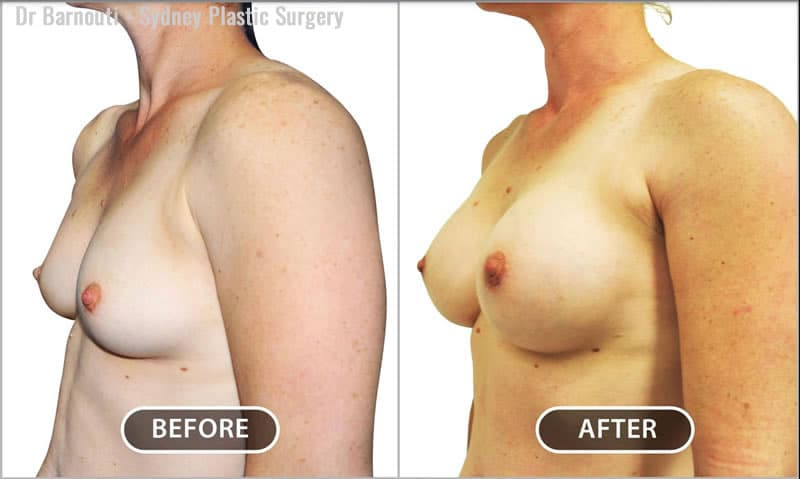 Breast augmentation with 240cc round breast implants. Note the perfect nipple position and proportionate chest.