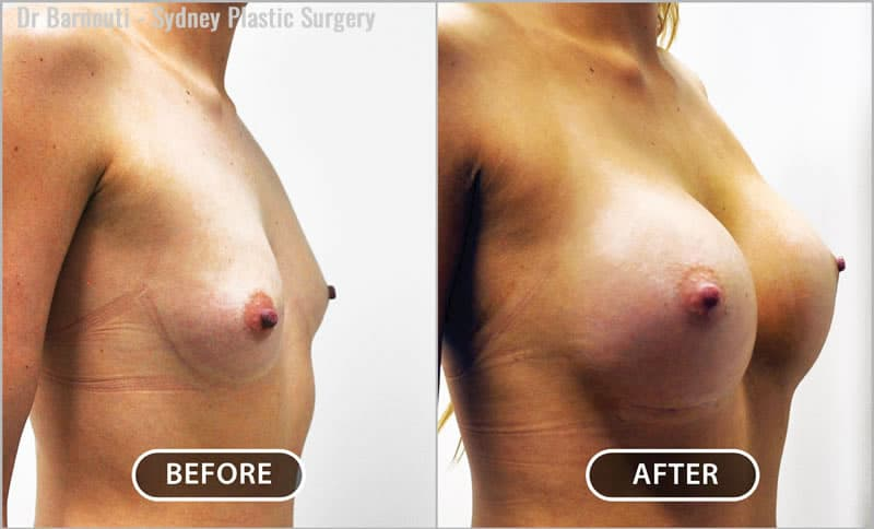 Breast augmentation with 300cc round breast implants. Natural outcome.